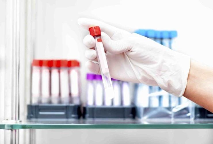 Как поднять гемоглобин у пожилых людей
